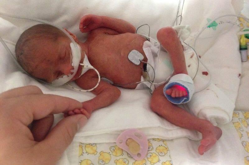 Testimonial: Very tiny baby